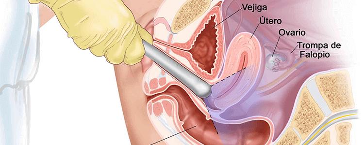 Ecografia Transvaginal - Ginecologos en Cucuta UNIFETUS5D