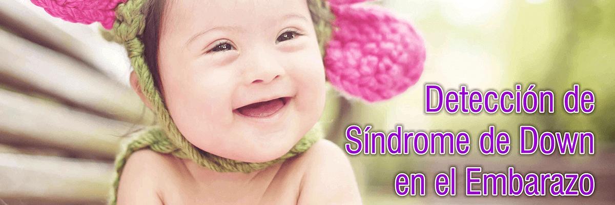 deteccion sindrome de down en el embarazo